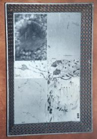 GREY MATTER: Tea service with bacterial collage, SOLD